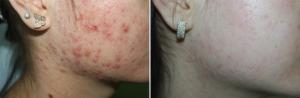 acne_webaft