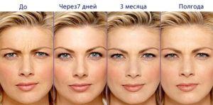 ozonoterapia_lica_3
